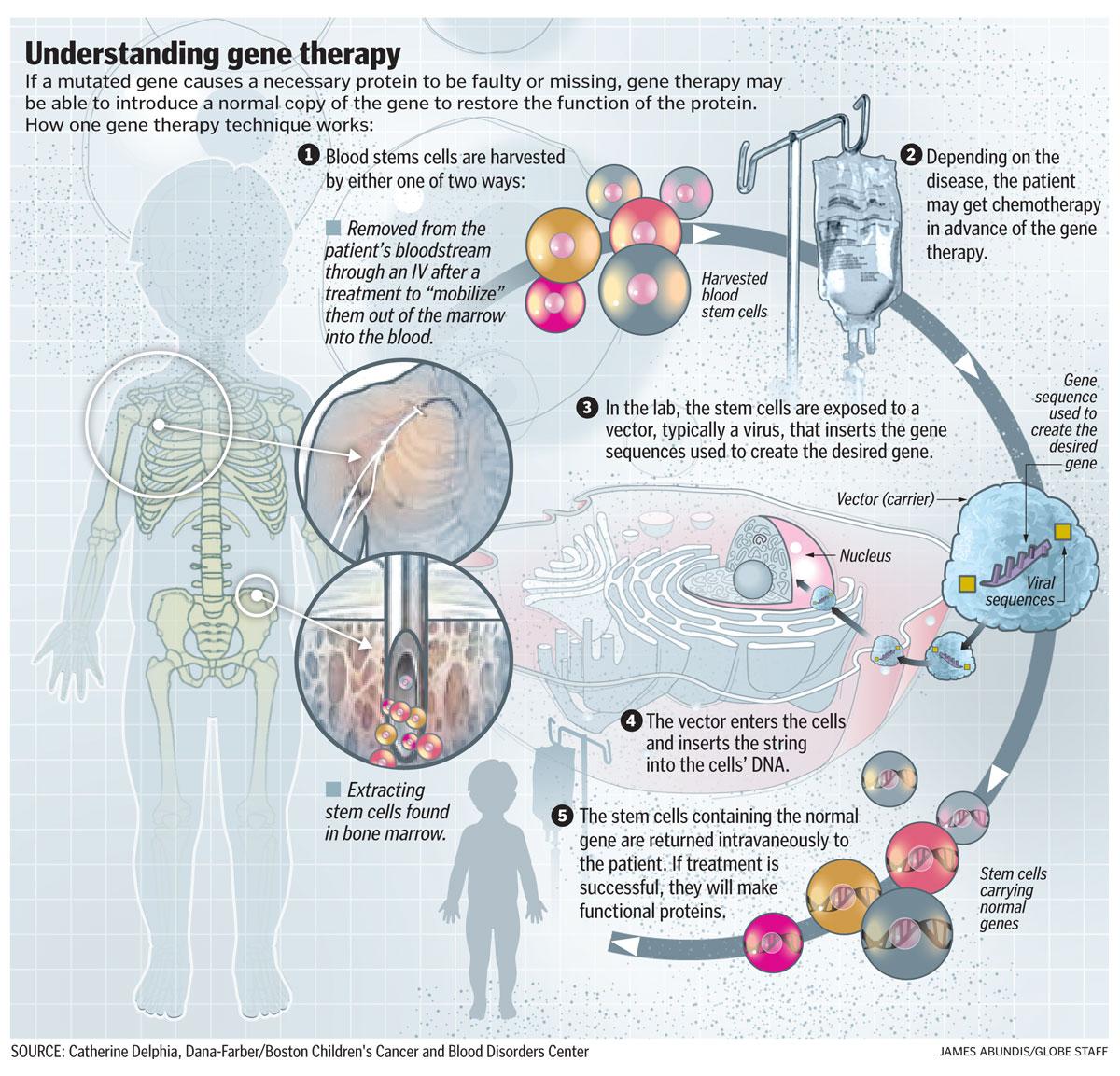 Retrovirus Gene Therapy